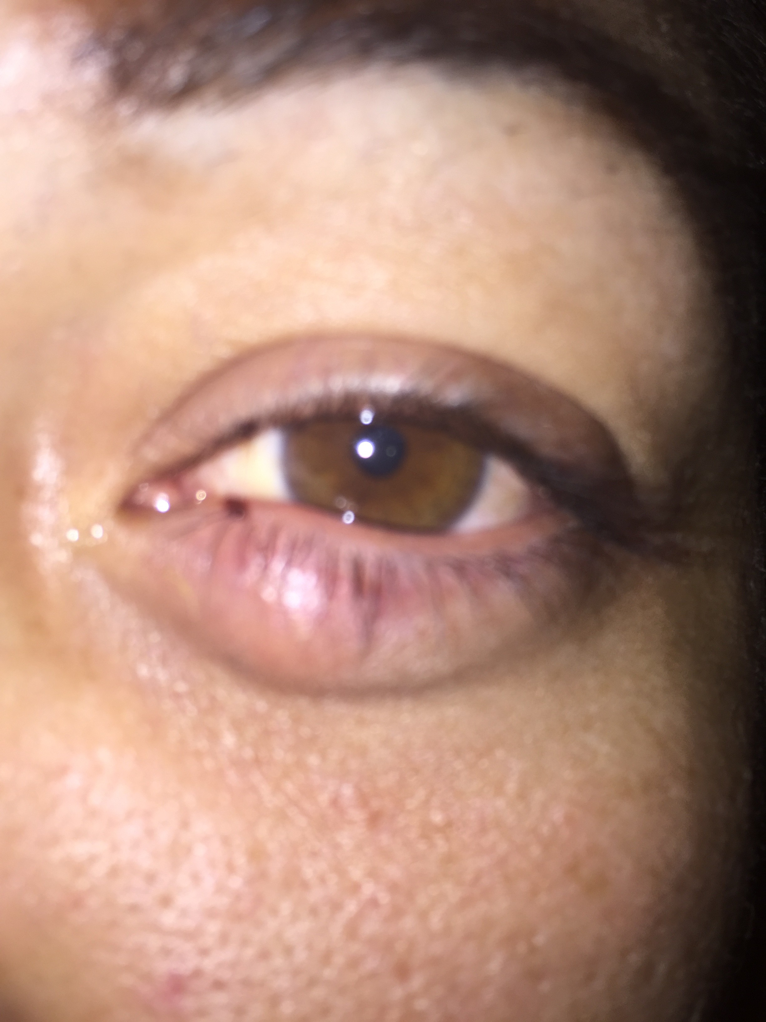 can steroid eye drops cause glaucoma