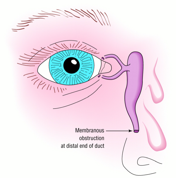 Blockage at the end of lacrimal duct