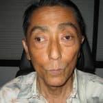 David Before strabismus Surgery