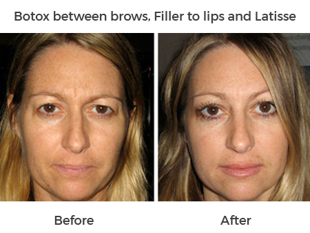 before and after botox, filler to lips and latisse