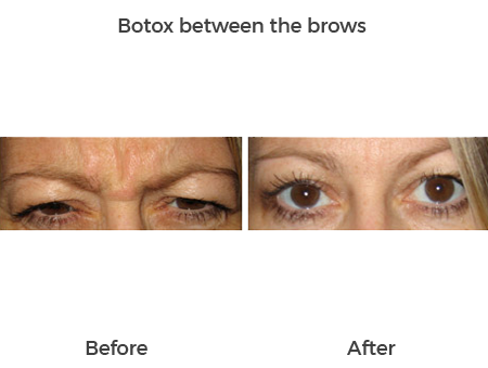 Botox-between-the-brows-2