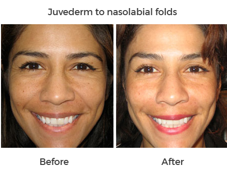 Juvederm to nasolabial