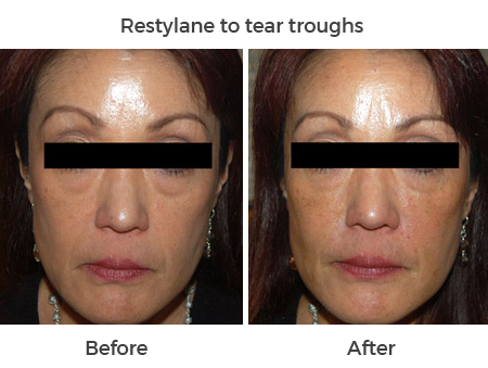 Restylane-to-tear-troughs-5