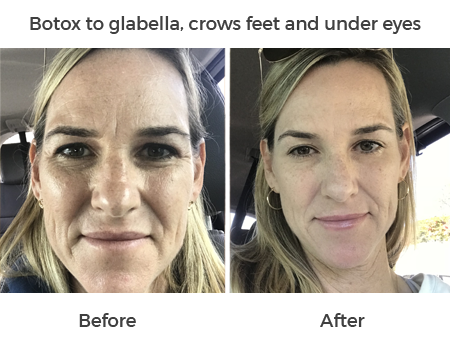 botox to glabella, crows feet and under eyes