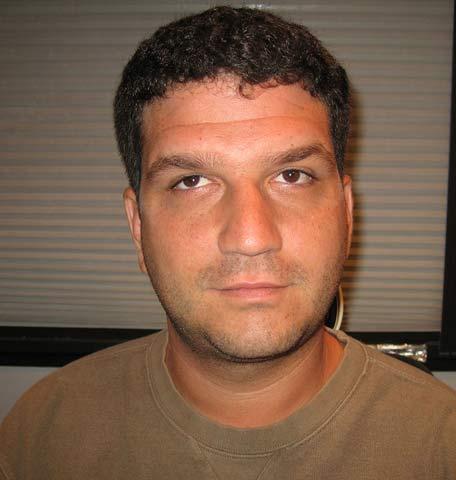 Joel Before strabismus Surgery