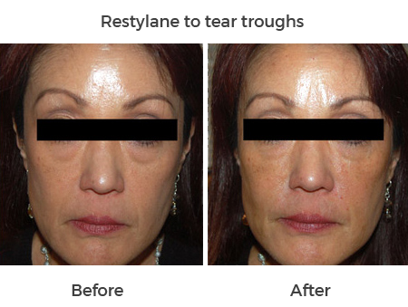 restylane to tear troughs